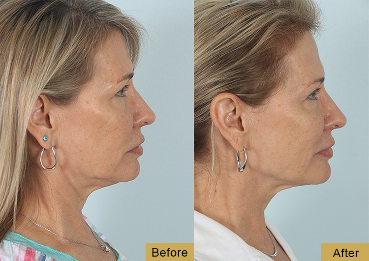 before and after embrace rf treatment in the woodlands texas