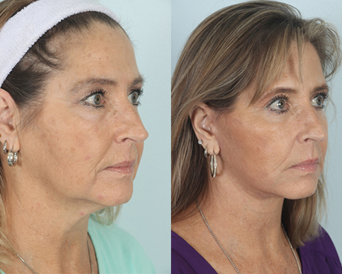 before and after facelift in shenandoah texas