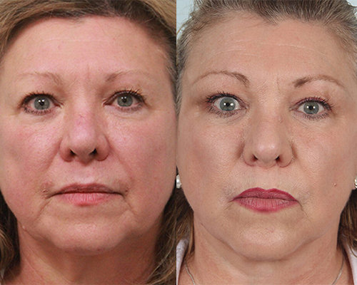 before and after female facelift with dr. guy in shenandoah texas