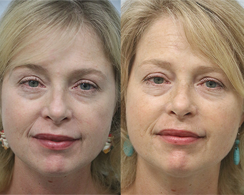 before and after fat transfer with dr. w. marshall guy