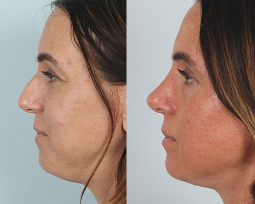 dr. guy facial plastic surgery before and after rhinoplasty
