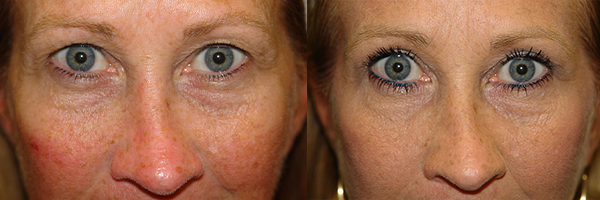 before and after blepharoplasty in the woodlands texas