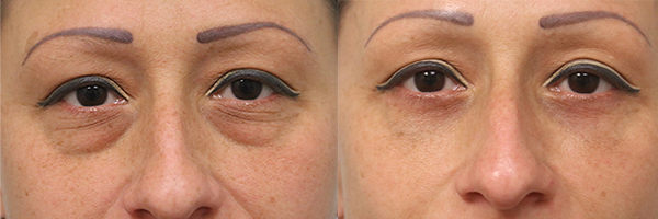 before and after eyelid surgery in the woodlands texas
