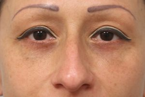 after blepharoplasty in the woodlands texas