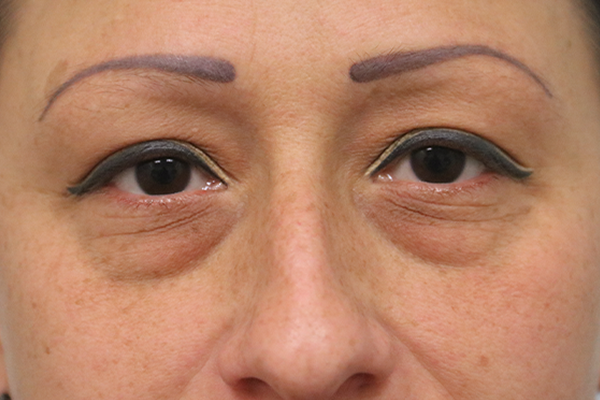before blepharoplasty in the woodlands texas