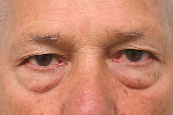 before blepharoplasty surgery in the woodlands texas