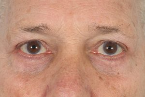 after blepharoplasty surgery in the woodlands texas