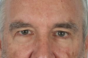before male blepharoplasty in the woodlands texas