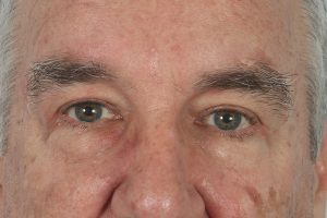 after male blepharoplasty in the woodlands texas