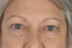 before female blepharoplasty in shenandoah texas