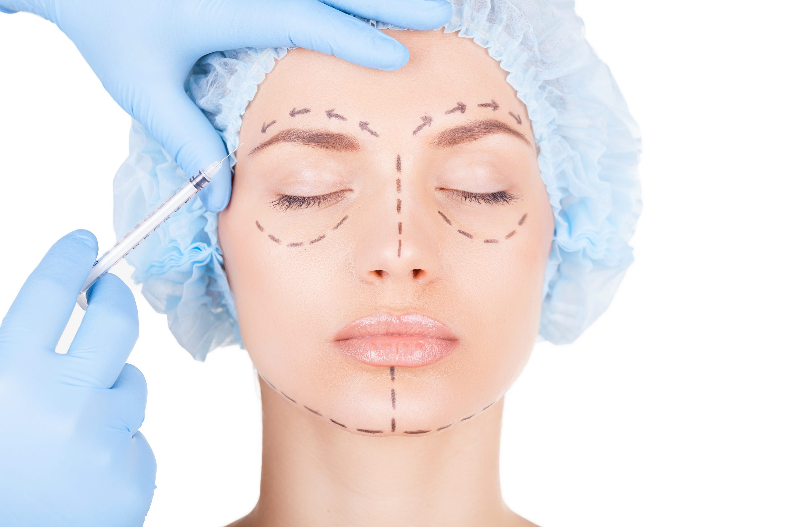 Is Facial Fat Grafting Better Than Dermal Fillers?